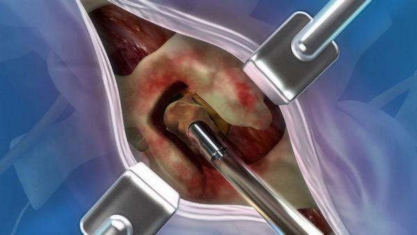 Spinalkanalstenose hws | Therapie Bandscheibenvorfall Hws